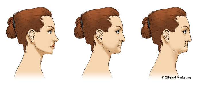 A diagram of a face with a collapsing jaw, explaining that the benefits of dental implants prevents bone loss.
