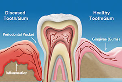 Cleanings & Gum Disease Treatment