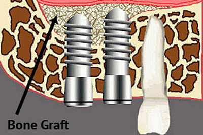 Bone grafting illustration
