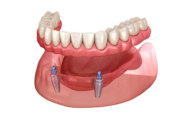 Illustration of implant-supported denture