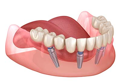 Fixed implant supported teeth