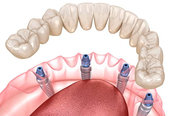 Dental implant full-arch bridge