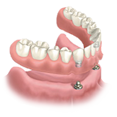 Diagram of an implant-supported snap-in denture.