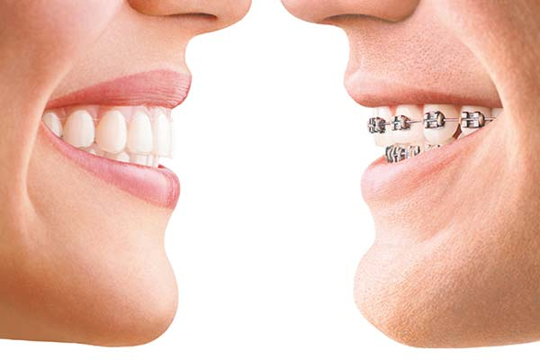 Invisalign versus traditional dentures