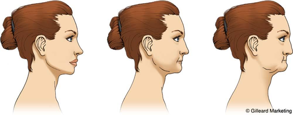 Illustration of bone loss