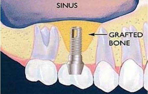 Sinus lift illustration