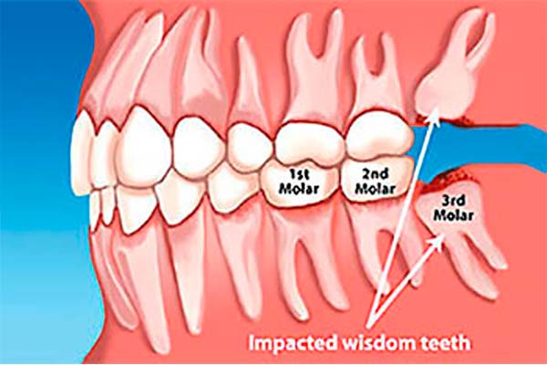 Wisdom tooth illustration